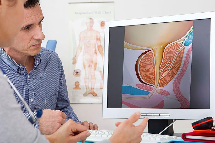 Комплексная диагностика простатита