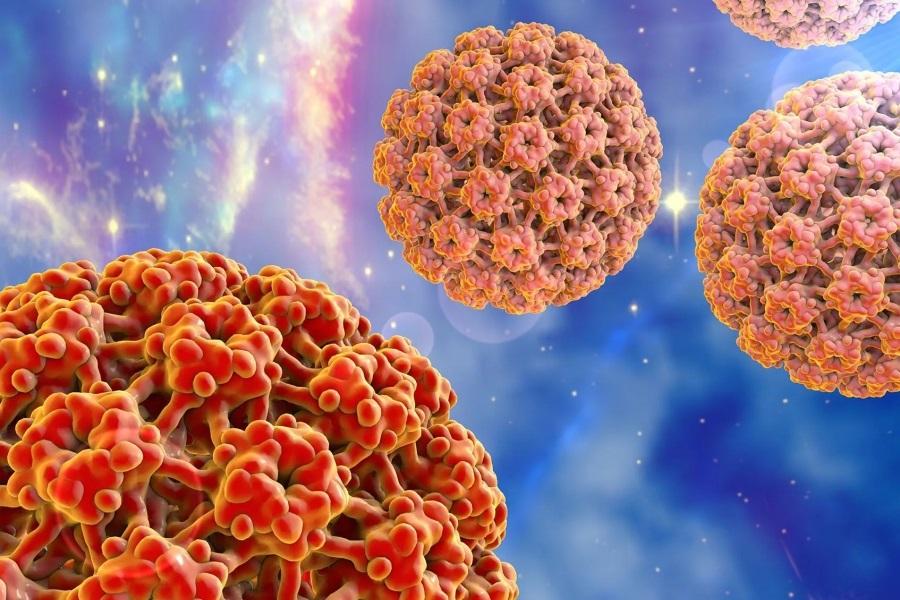Папилломы и кондиломы – два проявления вирусной инфекции