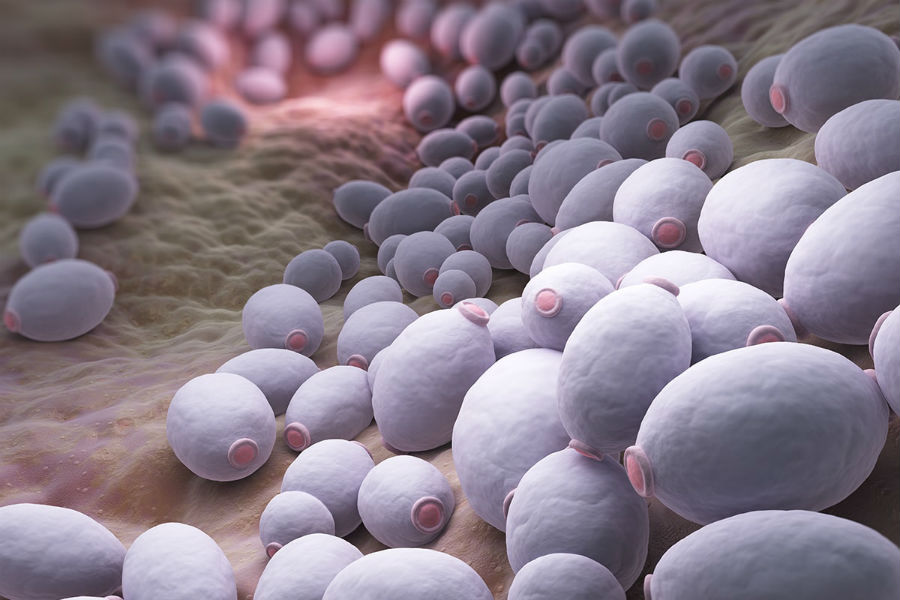 Кандидоз (молочница) — когда нестерпимо чешется