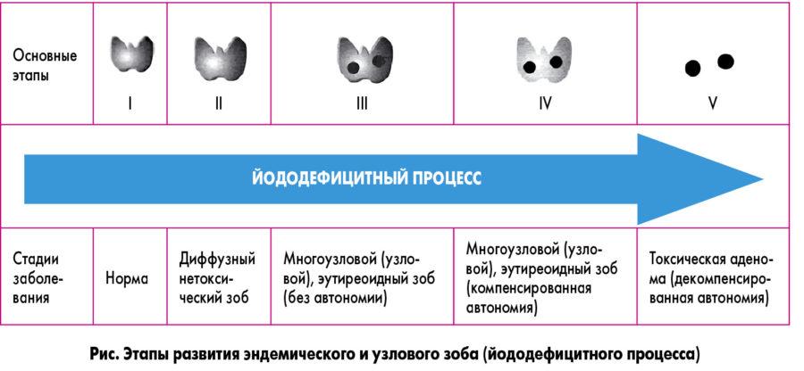 стадии развития зоба