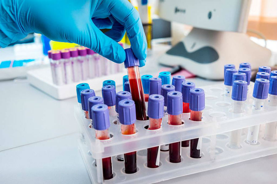 Электролиты крови: что это такое, их норма и причины изменений