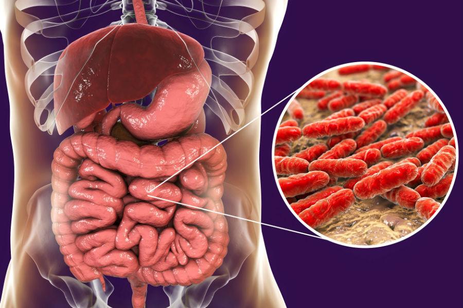 Дисбактериоз как выглядит