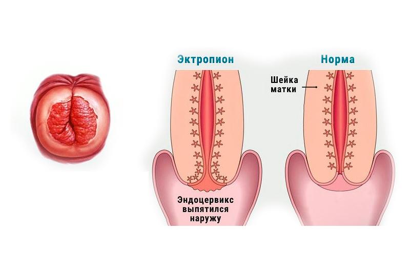 ектропион матки