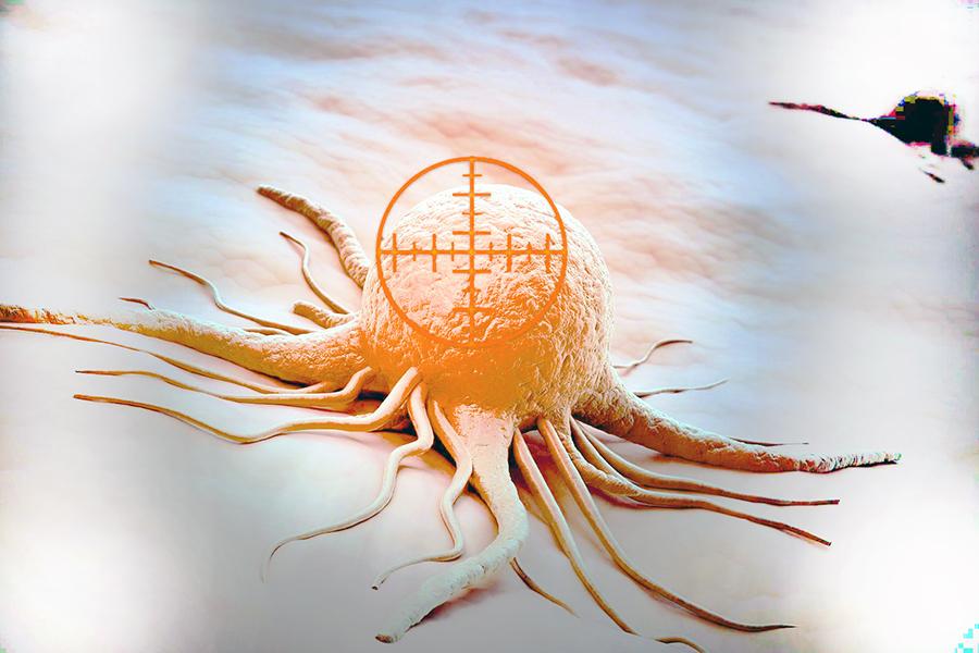 Новый метод лечения рака — консервация метастазов