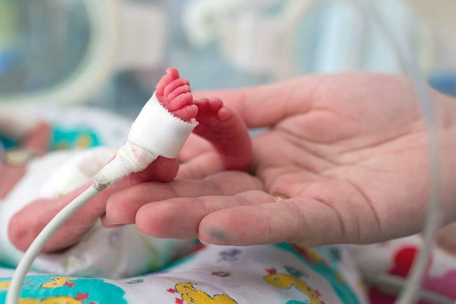 Врачи выходили больного малыша, весившего 740 гр.