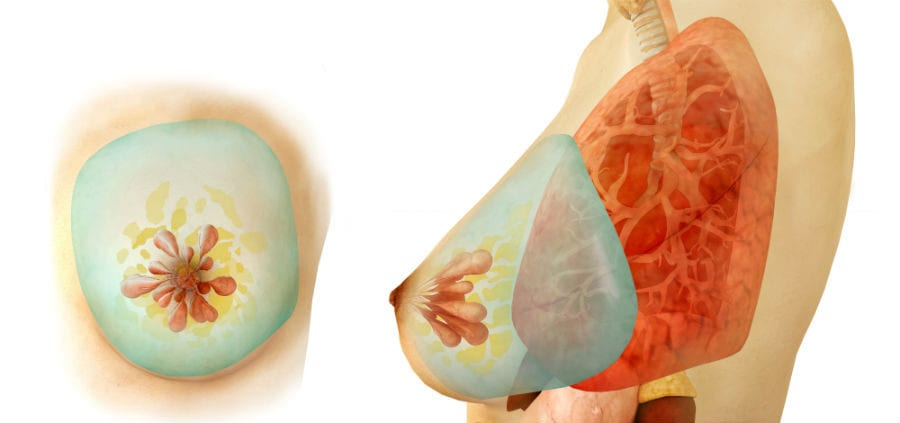 Рак соска молочной железы