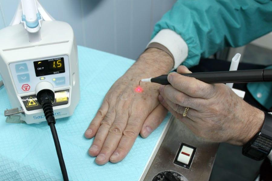 Создано плазменное устройство для заживления ран