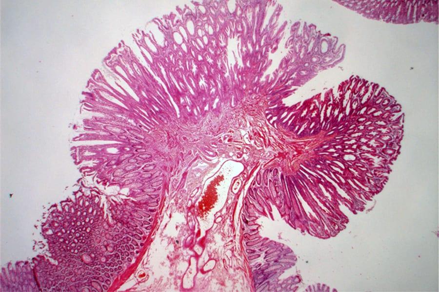 Фото эритроплакии шейки матки