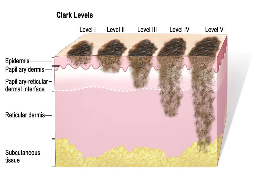 Классификация меланомы