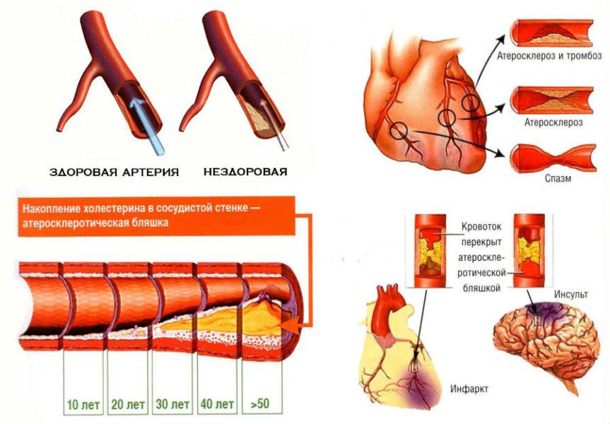 Накопление холестерина на стенках сосуда