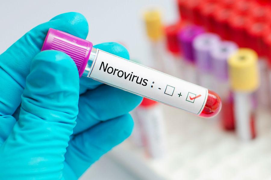 Норовирус