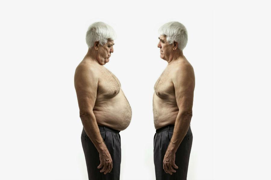 Ожирение и потеря веса
