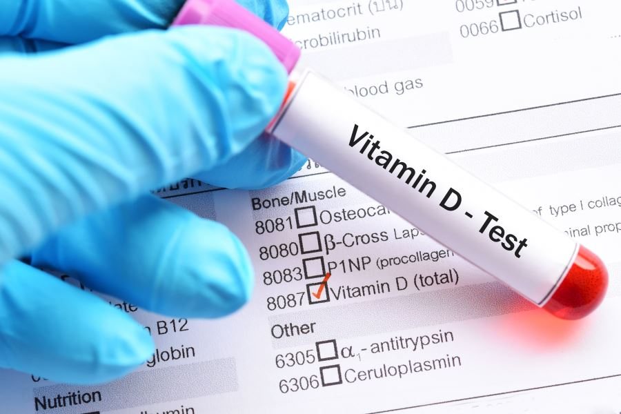 Тест на витамин D