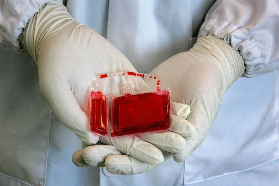 Кровопотеря