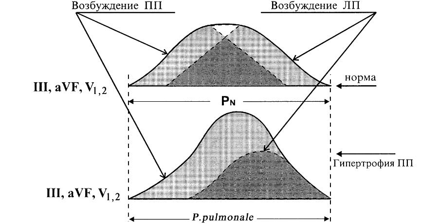 Формирование зубцов Р в норме и при гипертрофии ПП