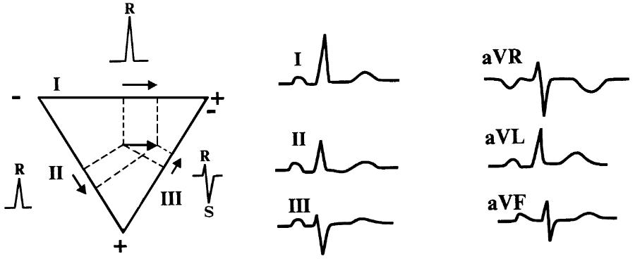Горизонтальное положение электрической оси сердца