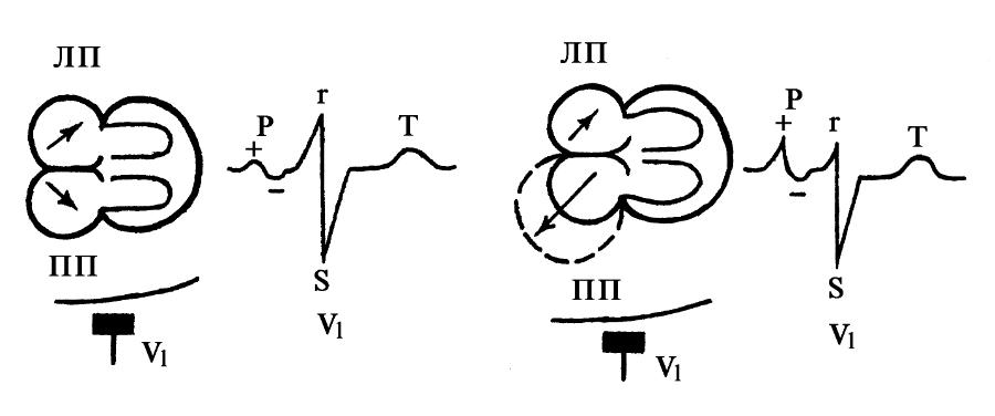 Механизм образования зубца Р в правом грудном отведении в норме и при гипертрофии ПП