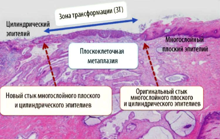 Многослойный плоский эпителий