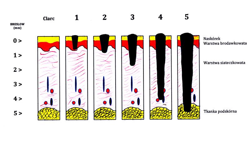 Патоморфологическая классификация по Бреслоу