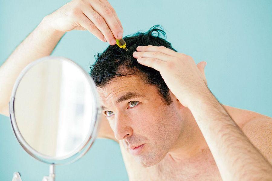 Сильному полу приходится выбирать между красивыми волосами и мужским здоровьем