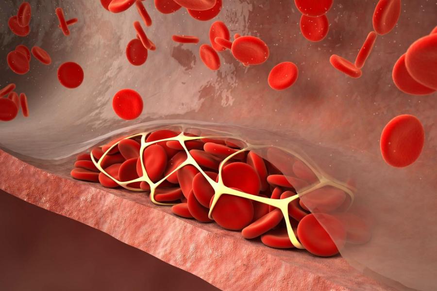 Кальцификацию сосудов при болезнях почек можно будет предотвратить с помощью IP6