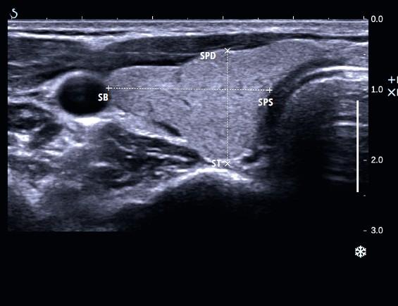 Правая доля щитовидной железы в поперечном сечении