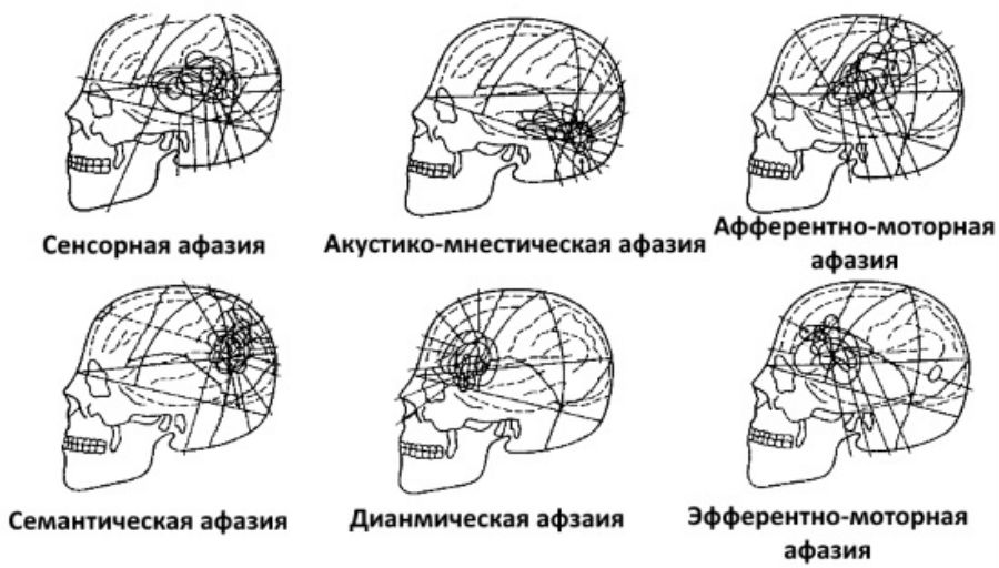 Типы афазии