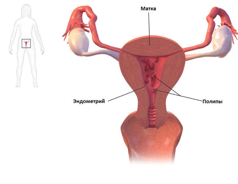 Эндометриальные полипы