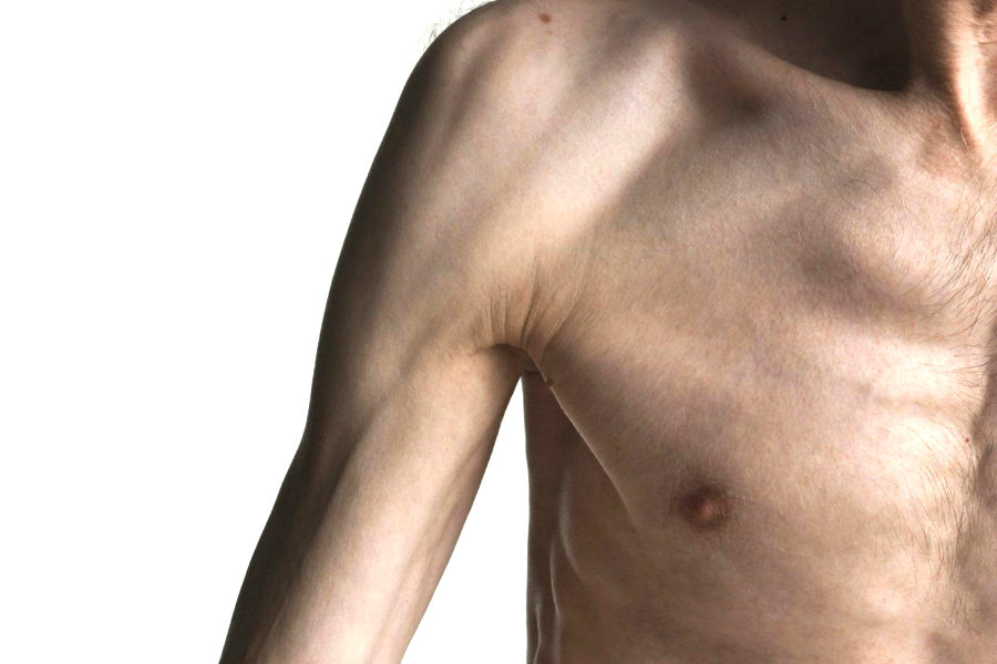 Дистрофия мышечной ткани