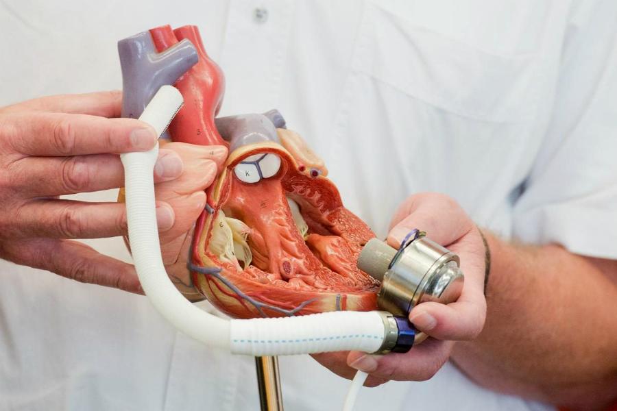 Гибридные сердца должны заменить донорские