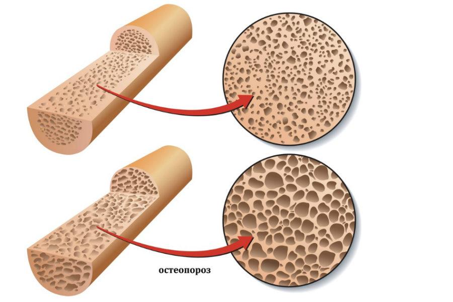 Остеопороз - состояние костей