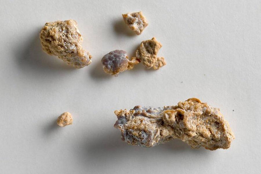 Цистиновые камни