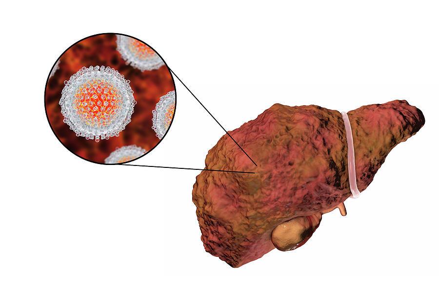 Гепатит В - пути передачи, риски заражения