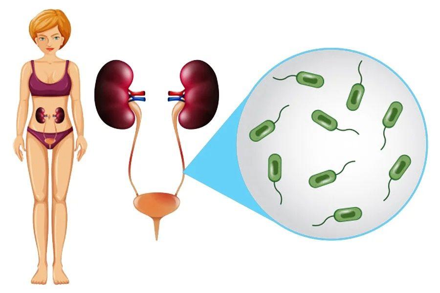 Инфекция мочевыводящих путей у женщин