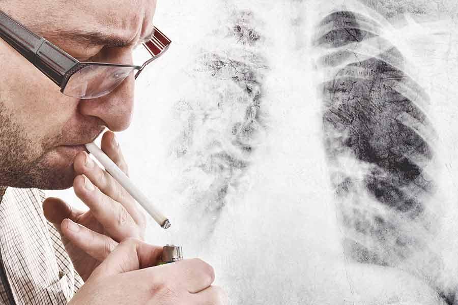 Исследования показывают, что никотин способствует распространению клеток рака легких в мозг