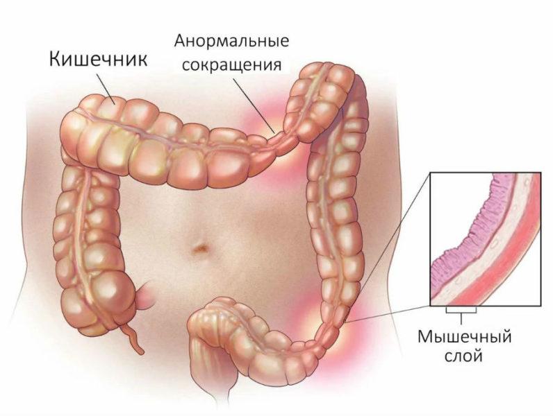 Синдром РК