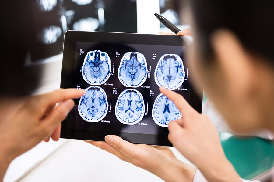 Ученые ещё на один шаг приблизились к разгадке причин опухоли мозга – глиобластомы