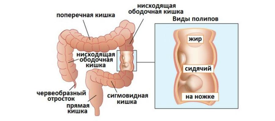 Аденоматозный полип