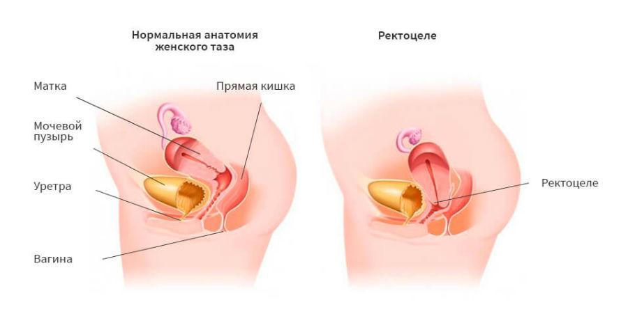 Что представляет собой ректоцеле