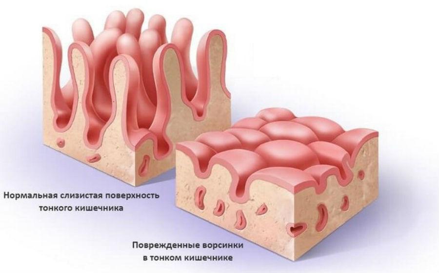 Поверхность кишечника при целиакии