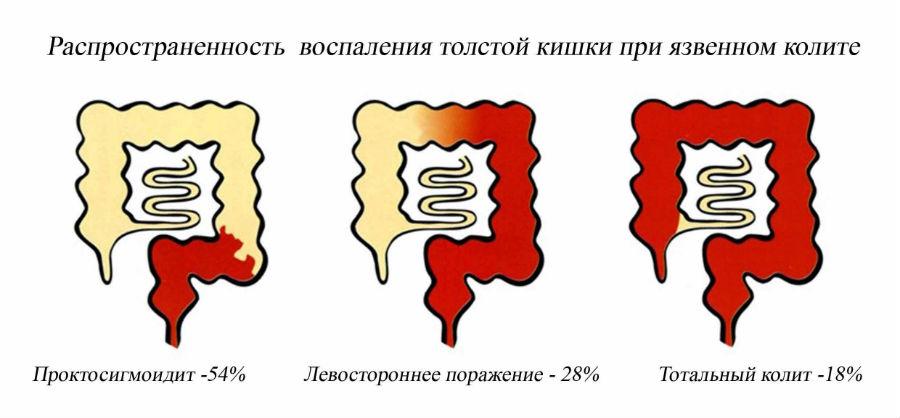 Распространенность воспаления толстой кишки при язвенном колите