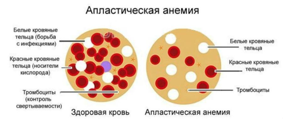 Что такое апластическая анемия