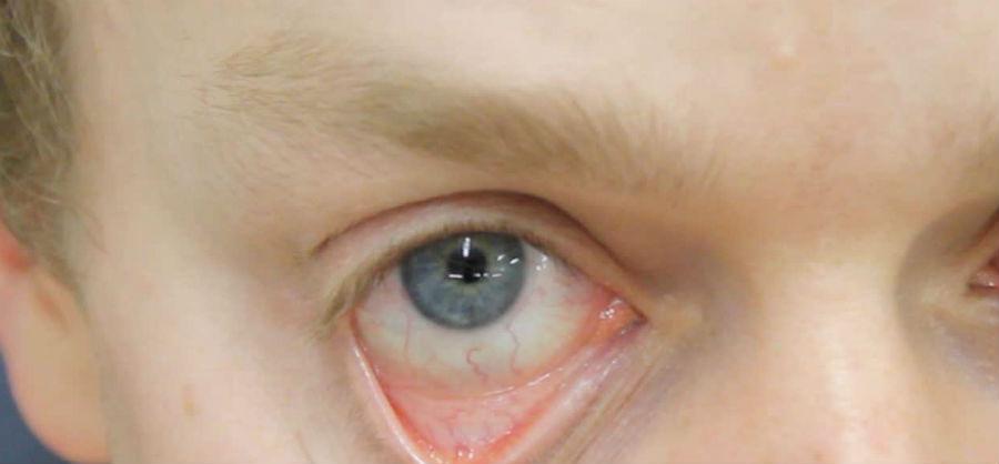 Бледность конъюнктивы при анемии