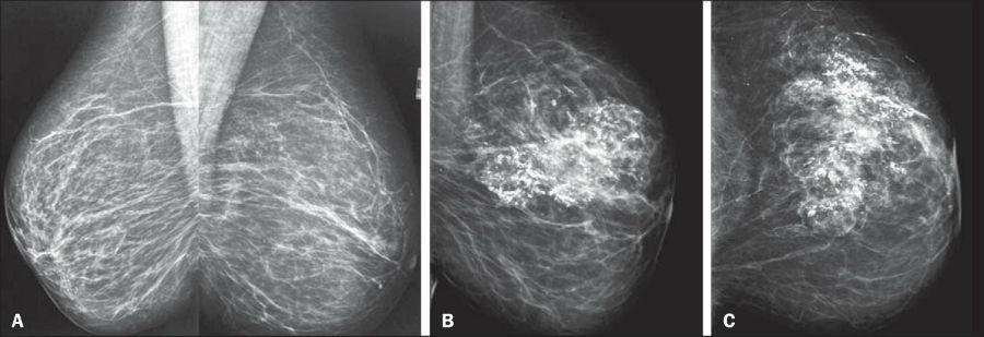 Маммографические особенности жирового некроза груди