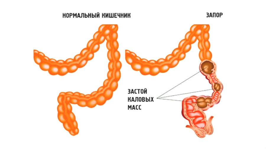 Отсутствие достаточного количества пищевых волокон в пище приводит к запорам