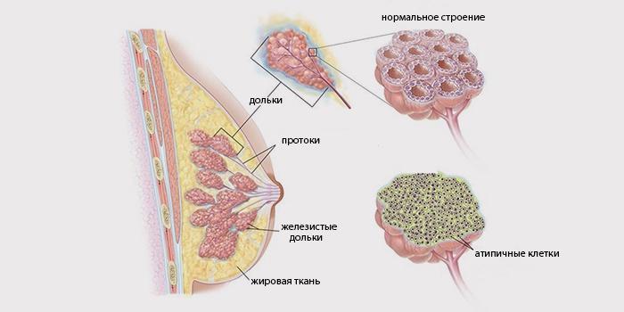 Дольковая инволюция и рак груди