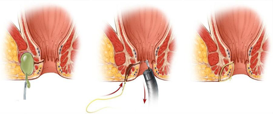 Хирургия анального свища