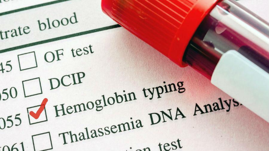 Оценка концентрации гемоглобина в крови