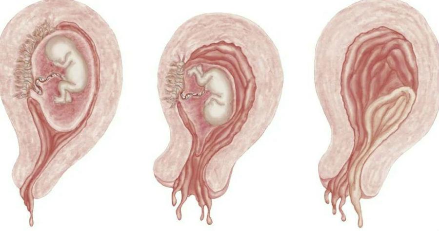 Стадии самопроизвольного аборта