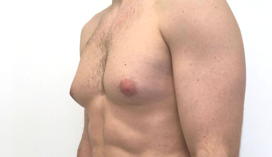 Увеличение мужской груди